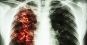 Yet Another Health Emergency: Drug Resistant Tuberculosis sufferer Goes AWOL in California