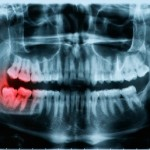 Sink Your Teeth Into This: How to Mitigate Dental Pain in a Post-Collapse World