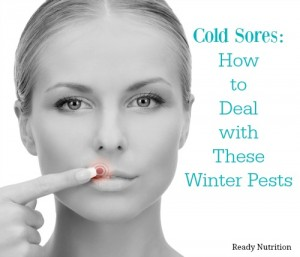 Cold Sores: How to Deal with These Winter Pests