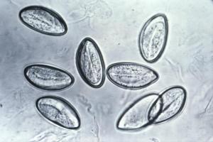 pinworm eggs wikimedia