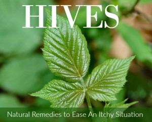 Hives: Natural Remedies to Ease An Itchy Situation