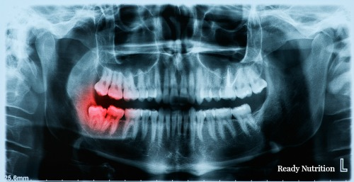 post collapse oral health